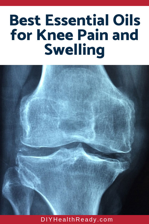 Best Essential Oils for Knee Pain and Swelling 2