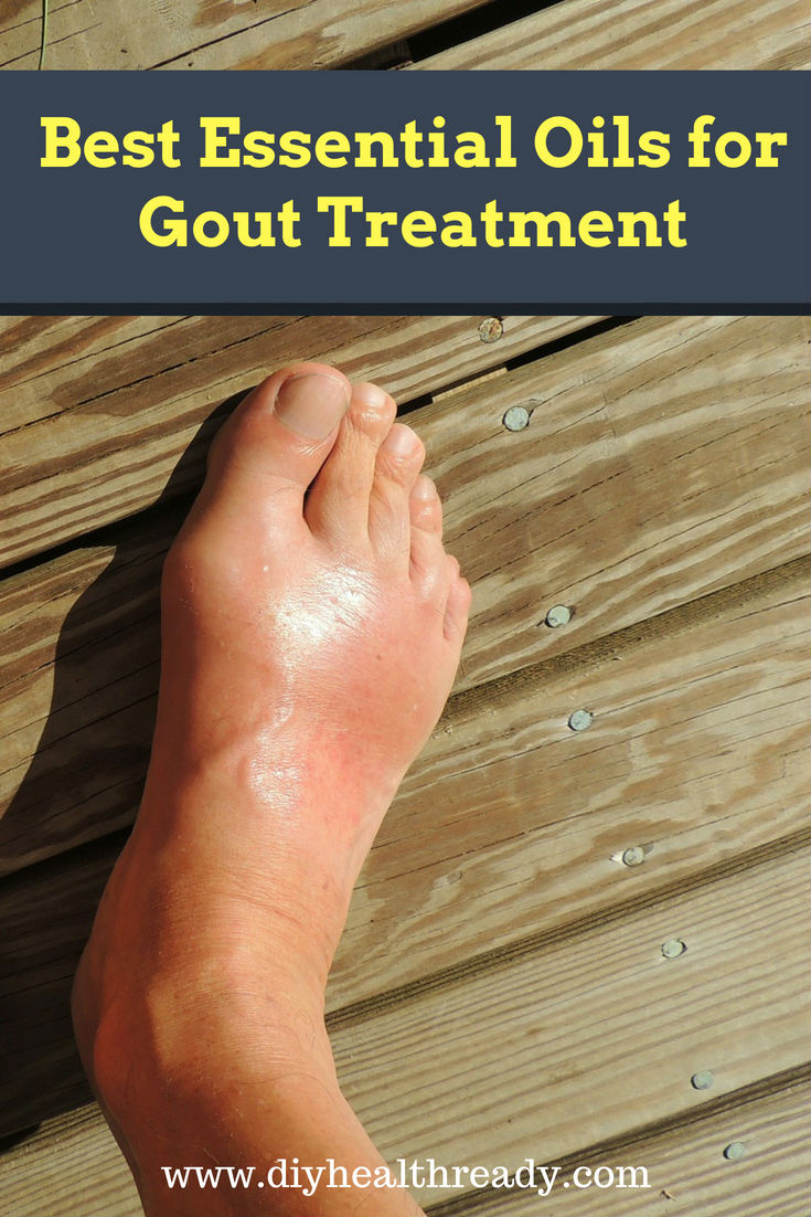 Best Essential Oils for Gout Treatment 2